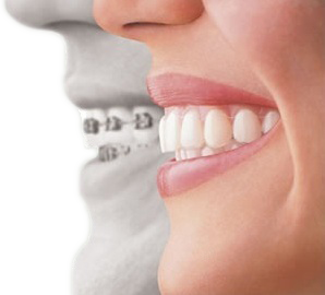 invisalign-side