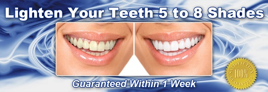 home teeth whitening kit